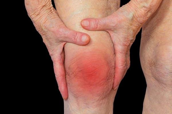 تزریق پی آر پی برای درمان آرتریت