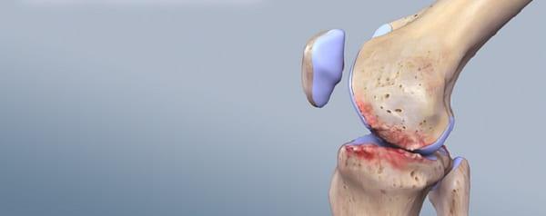 تزریق پی آر پی برای درمان استئو آرتریت مفصل