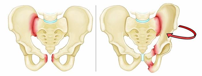انواع شکستگی استخوان لگن شامل چه مواردی است