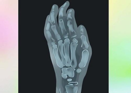 انگشت ماشهای چگونه تشخیص داده میشود