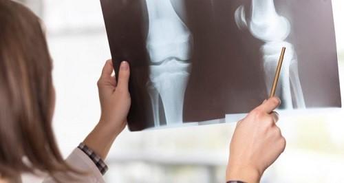تشخیص درد زانوی بعد از زایمان