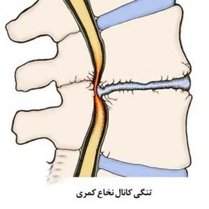 تنگی کانال نخاع، علتها و درمان