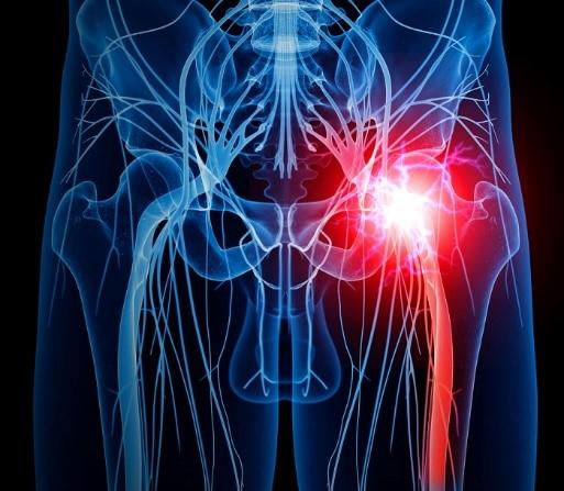 درمان سندروم پیریفورمیس