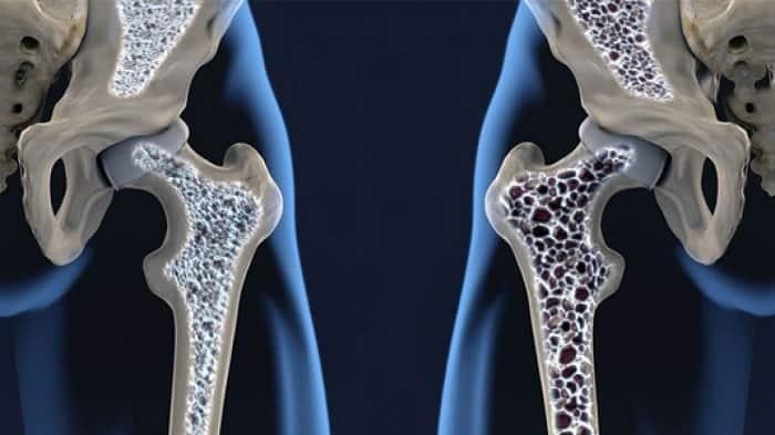دلایل و علائم پوکی استخوان چیست؟