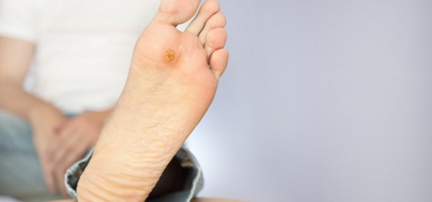 زخم پای دیابتی زخم¬های ناشی از مرض قند در پا و درمان