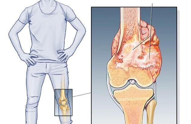 سرطان استخوان زانو-min