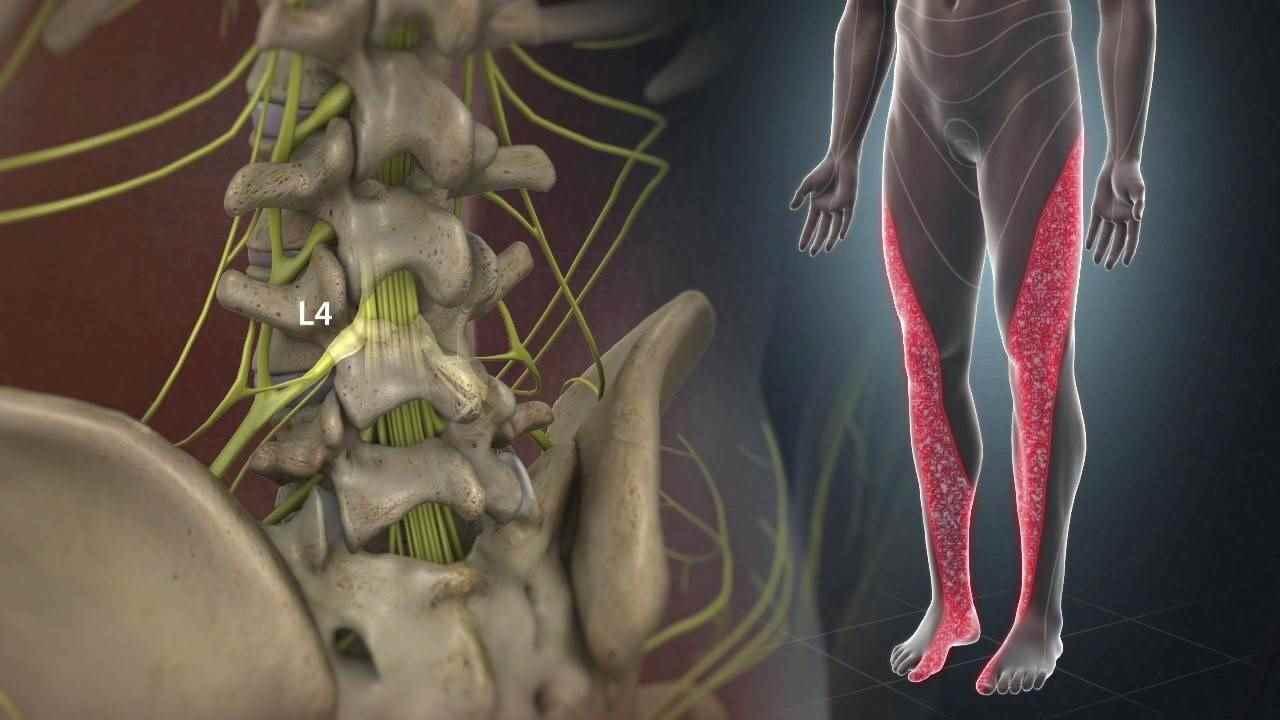 علائم دیسک کمر در پاها گزگز، ضعف و انتشار درد از پایین کمر تا پاها