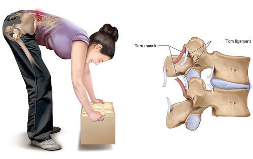 علت رگ به رگ شدن کمر -کشیدگی در ناحیه کمر
