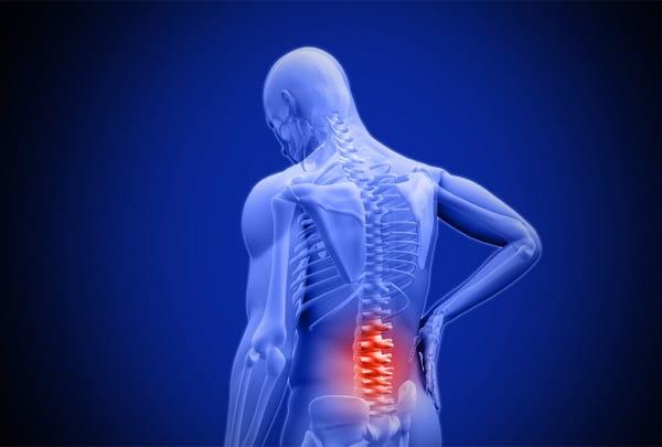 علل تنگی کانال نخاعی ناحیه کمر چیست؟
