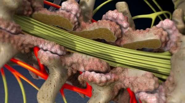 عمل جراحی برای درمان تنگی کانال نخاعی