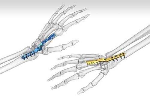 عمل جراحی درمان آرتریت مچ دست