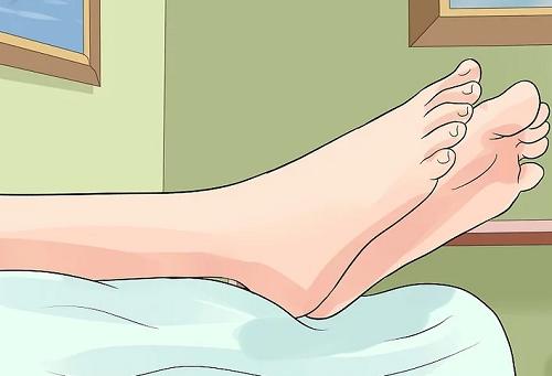 Achilles tendinitis 3