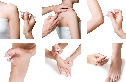 Cortisone injections6