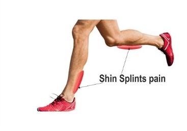 Shin splints 1