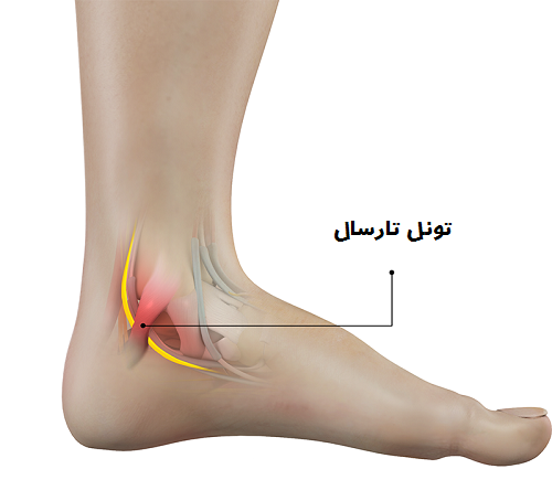 Tarsal Tunnel Syndrome 1