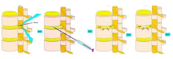 درمان فتق دیسک کمر بدون جراحی